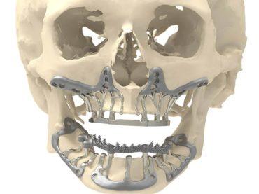 KCE crée une controverse sur l'efficacité et la sécurité de l'impression 3D pour les applications médicales