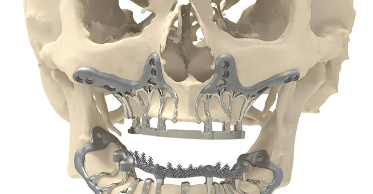 KCE creates controversy on effectiveness and safety of 3D printing for medical indications