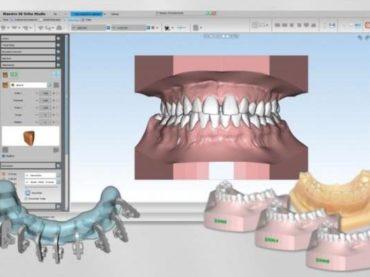 Shining 3D et AGE Solutions développent un logiciel dentaire numérique 3D