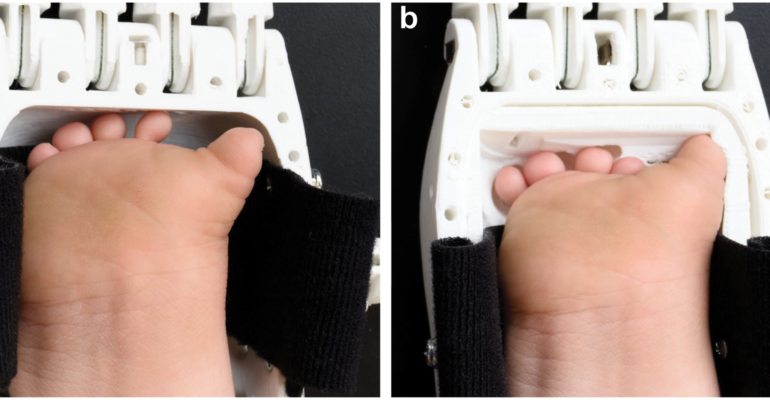 Why do researchers integrate electronic sensors into customized 3D printed prosthetics?